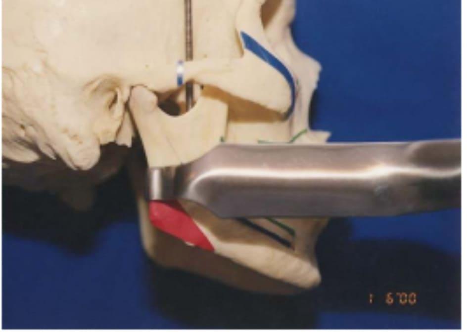"""Hình 39-8 """"Retractor"""" theo đường dọc phần xương cắt Obwegeser đặt ở bờ sau ngành xương hàm"""