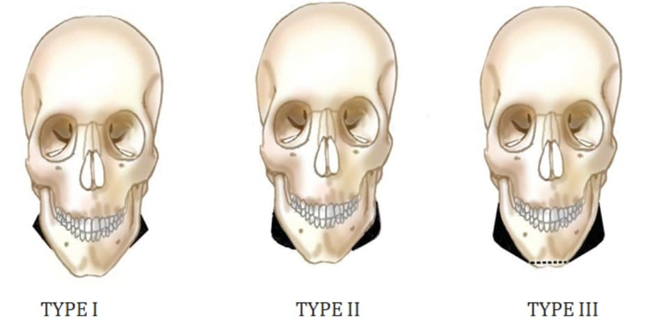 Hình 40-1 Classification of the shape of the mandible. Type I: The mandibular angle juts out conspicuously. Type II: The mandibular angle is curved posteromedially and the mandibular body protrudes in convexity. Type III: Type II, with loss of the vertical height of the chin.