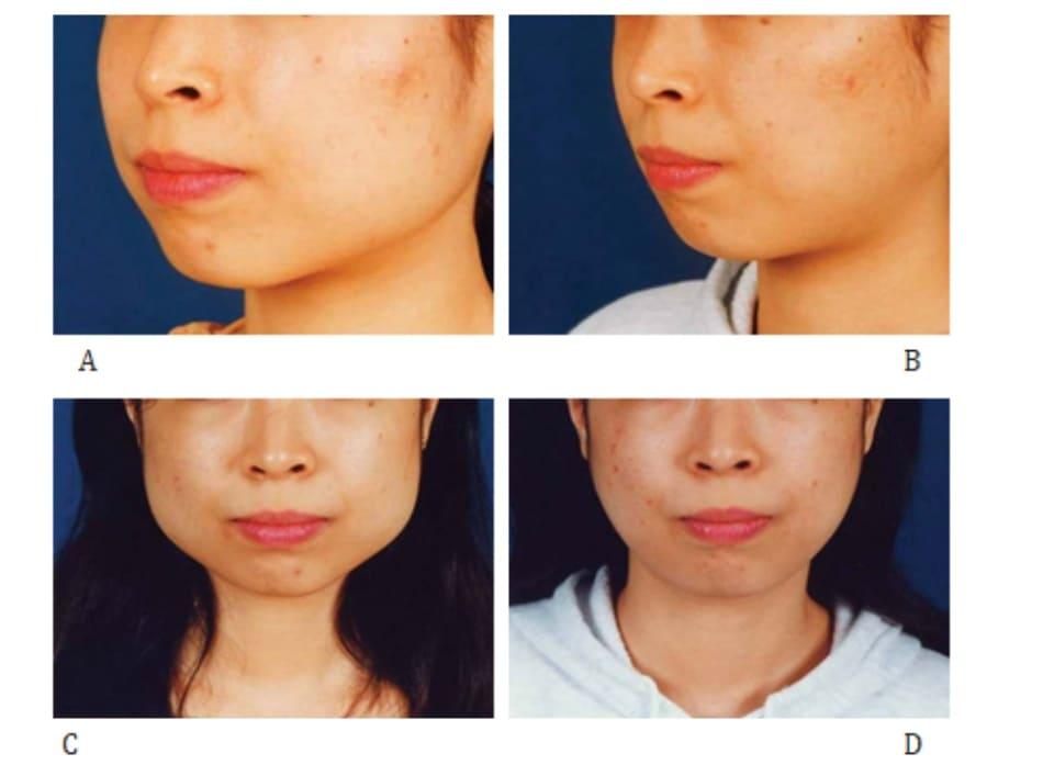 Hình 40-2 Case 1: Phẫu thuật cắt – tách góc hàm được thực hiện trên một người phụ nữ 22 tuổi. Mặc dù có phì đại cơ cắn nhưng cắt bỏ vẫn chưa xong.Trước phẫu thuật (A,B) và 1 tháng sau phẫu thuật (C,D).