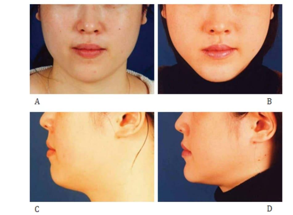Hình 40-3 Case 2: Phẫu thuật cắt – tách góc hàm và đẩy trượt phần dưới xương hàm dưới ở một phụ nữ 24 tuổi. Trước phẫu thuật (A,B) và 3 tháng sau phẫu thuật (C,D).