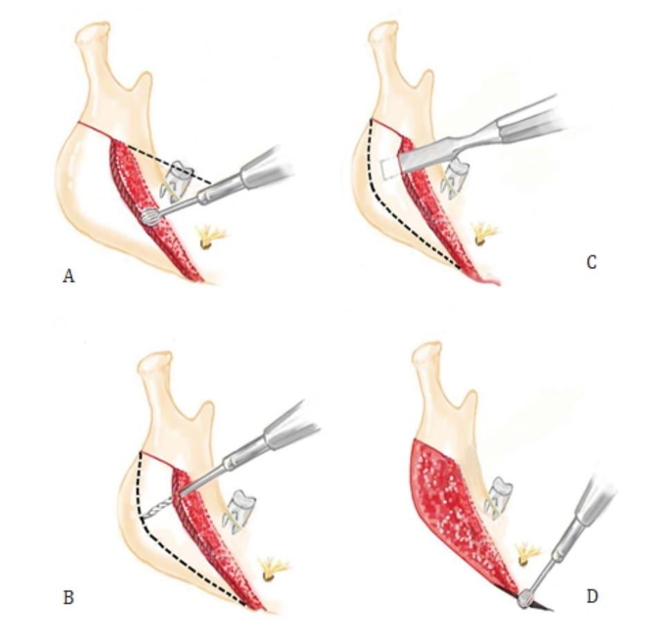 Hình 40-5 Minh họa cắt – tách góc xương hàm. A, vùng hình chấm đỏ được cạo bằng mũi khoan tròn, và lưỡi khoan xuyên tạo một rãnh sâu đi dọc theo đường từ mặt cắn. Rãh này là ranh giới trên của phần xương được tách đi. B, một lưỡi khoan dùng để tạo đường hầm ở các khoảng 2 – 3 mm. Phần vỏ ở bên và giữa được cắt bỏ trong trường hợp bờ sau dưới nhô ra ngoài. C, vỏ được tách bằng dụng cụ đục rộng 10 mm dọc theo đường hầm. D, phần xương sau cắt ở bờ dưới xương hàm gần lỗ cằm được tỉa gọn bằng khoan lưỡi tròn.