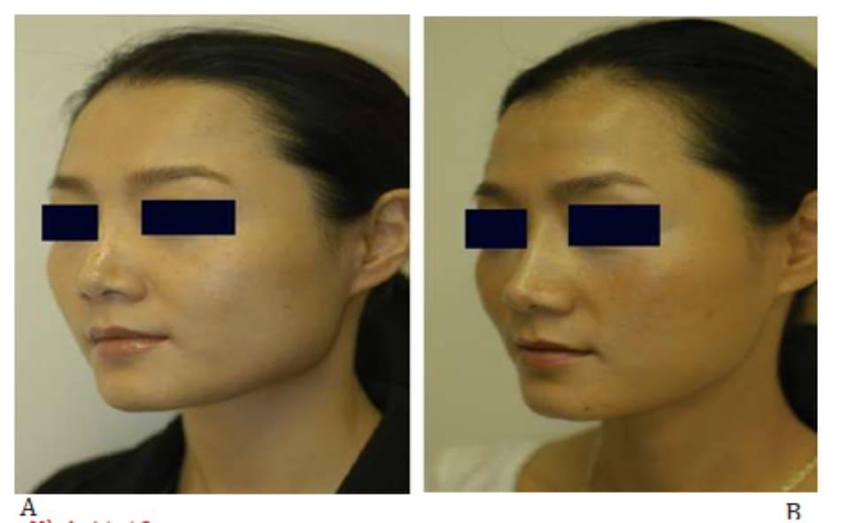 Hình 41-12 A, Hình ảnh nhìn nghiên trước thủ thuật. B, Hình ảnh nhìn nghiêng sau thủ thuật. Đường cong mượt mà quanh góc hàm xuất hiện.
