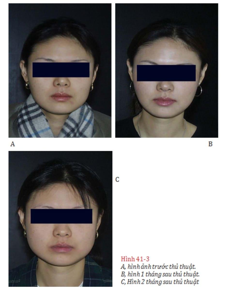 Hình 41-3 A, hình ảnh trước thủ thuật. B, hình 1 tháng sau thủ thuật. C, Hình 2 tháng sau thủ thuật