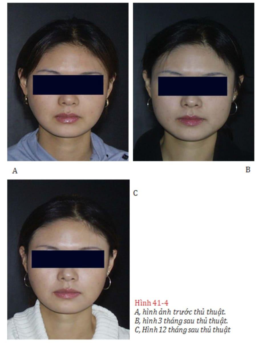 Hình 41-4 A, hình ảnh trước thủ thuật. B, hình 3 tháng sau thủ thuật. C, Hình 12 tháng sau thủ thuật