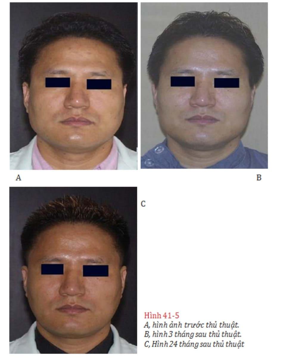 Hình 41-5 A, hình ảnh trước thủ thuật. B, hình 3 tháng sau thủ thuật. C, Hình 24 tháng sau thủ thuật