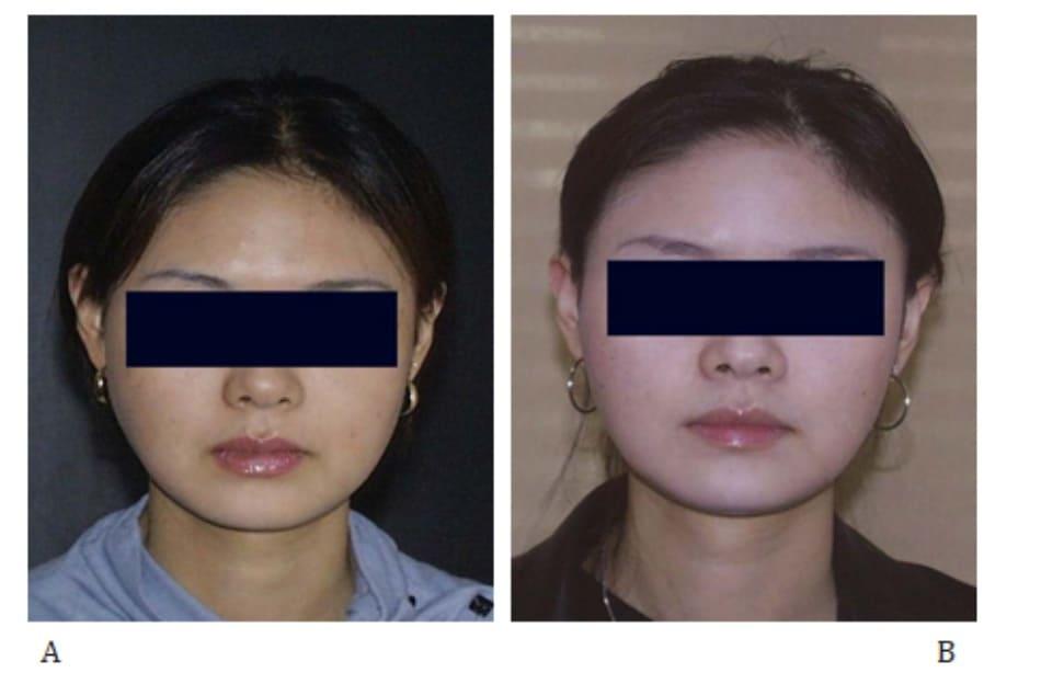 Hình 41-6 A, hình ảnh 3 tháng sau thủ thuật. B, Hình 4 tháng sau tiêm mũi thứ hai, tức 12 tháng sau mũi tiêm đầu tiên.