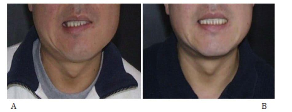Hình 41-7 A, Môi lệch sang bên phải do yếu cơ bám da cổ bên trái. B, 5 đơn vị Dysport được tiêm vào cơ bám da cổ bên phải vị trí bờ dưới – trước của cơ cắn ở mặt phẳng sâu dưới da.
