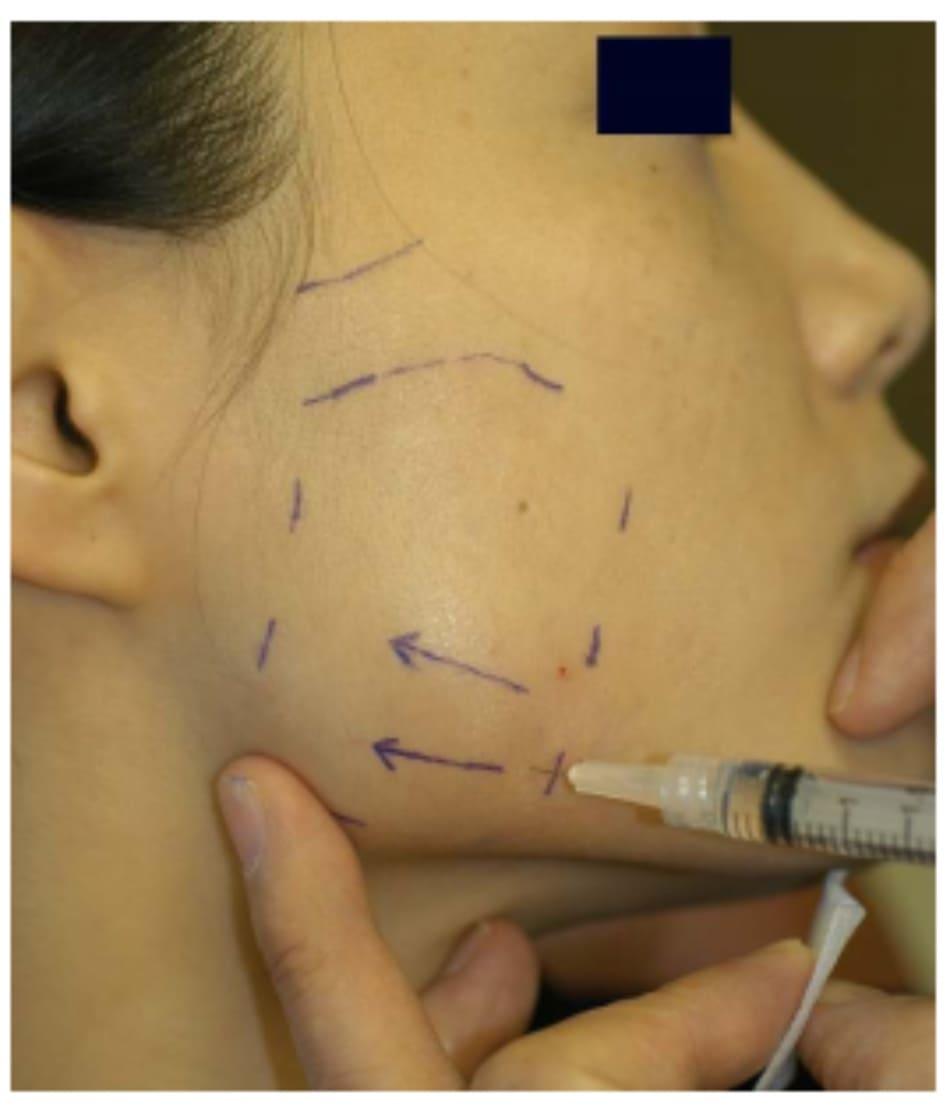 Hình 41-8 Ngón trỏ bên trái giữ góc hàm để định hướng. Bệnh nhân tiếp tục co cơ bằng cách cắn chặt hàm. Tiếp cận theo chiều ngang từ trước được ưa chuộng.