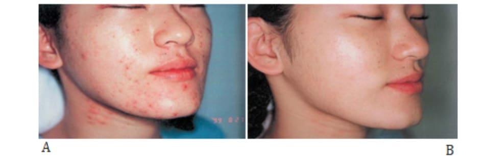 Hình 42-1 A, Trước peel. Bệnh nhân nữ 28 tuổi bị mụn trứng cá thông thường, điều trị không hiệu quả bằng các phương pháp khác. B, Sau peel.