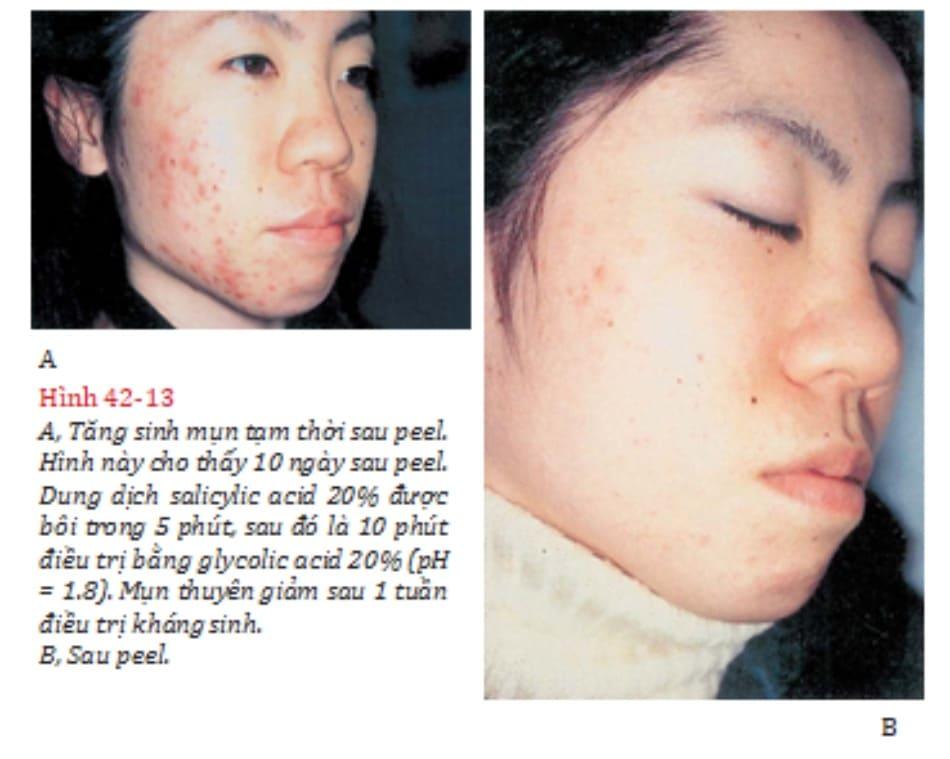 Hình 42-13 A, Tăng sinh mụn tạm thời sau peel. Hình này cho thấy 10 ngày sau peel. Dung dịch salicylic acid 20% được bôi trong 5 phút, sau đó là 10 phút điều trị bằng glycolic acid 20% (pH = 1.8). Mụn thuyên giảm sau 1 tuần điều trị kháng sinh. B, Sau peel.