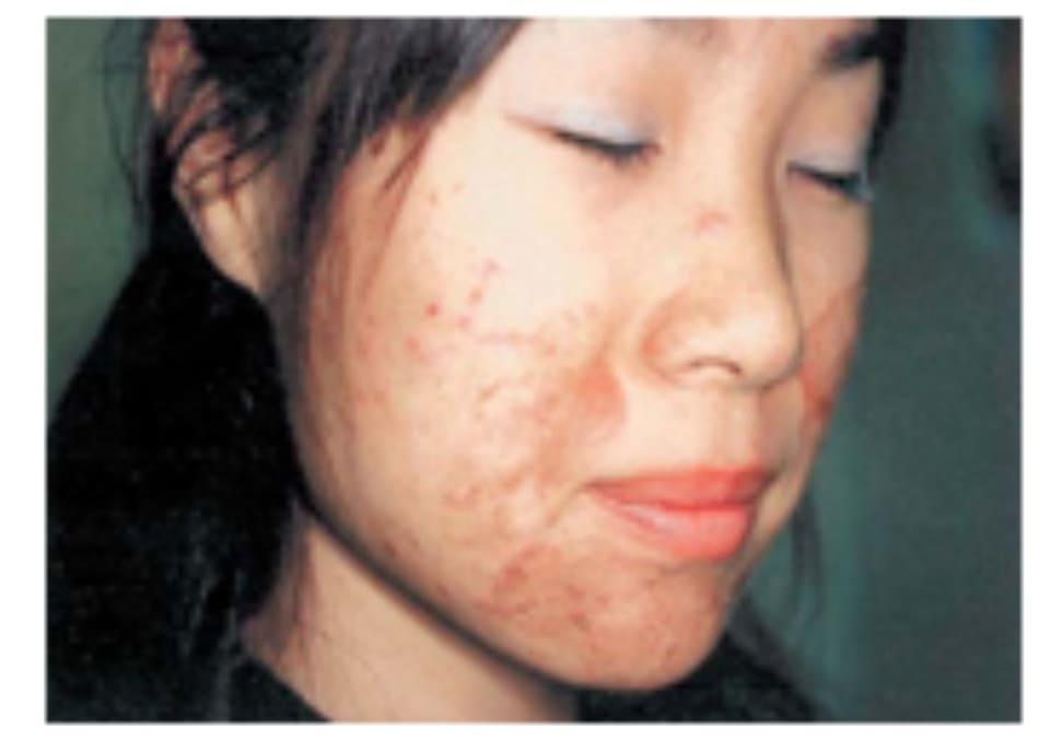 Hình 42-14 Mảng sần 5 ngày sau peel hóa chất. Bệnh nhân nữ 22 tuổi này được điều trị bằng dung dịch Jessner trong 5 phút.