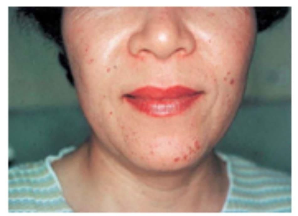 Hình 42-15 Mảng sần 5 ngày sau peel hóa chất. Bệnh nhân nữ 58 tuổi này được điều trị bằng glycolic acid 30% trong 10 phút (pH = 1.2).