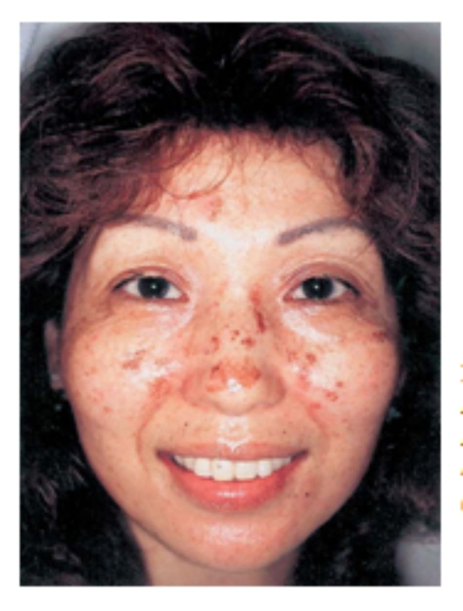 Hình 42-16 Mảng sần 4 ngày sau peel hóa chất. Bệnh nhân nữ 52 tuổi này được điều trị bằng glycolic acid 40% trong 10 phút (pH = 1.2). Mảng sần biến mất ngay.