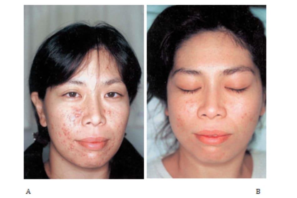 Hình 42-3 A, Trước peel. Bệnh nhân nữ 29 tuổi bị mụn trứng cá thông thường, điều trị các biện phpa1 khác không hiệu qảu. B, Sau peel.