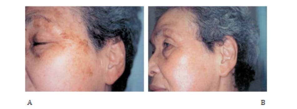 Hình 42-4 A, Trước peel. Bệnh nhân nữ 72 tuổi bị lão hóa da do ánh sáng. B, Sau peel.
