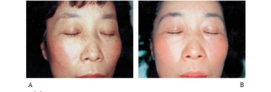 Hình 42-5 A, Trước peel. Bệnh nhân nữ 47 tuổi bị lão hóa da do ánh sáng và tăng sắc tố rải rác. B, Sau peel.