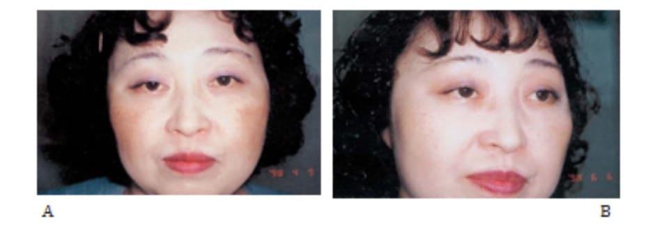 Hình 42-6 A, Trước peel. Bệnh nhân nữ 45 tuổi bị nám má. B, Sau peel.