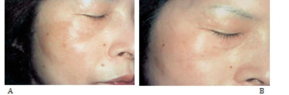 Hình 42-7 A, Trước peel. Bệnh nhân nữ 47 tuổi bị nám má. B, Sau peel.
