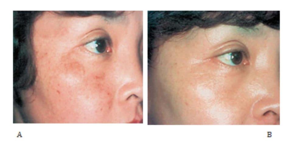 Hình 42-8 A, Trước điều trị. Bệnh nhân nữ 45 tuổi bị nám má. B, Sau điều trị.