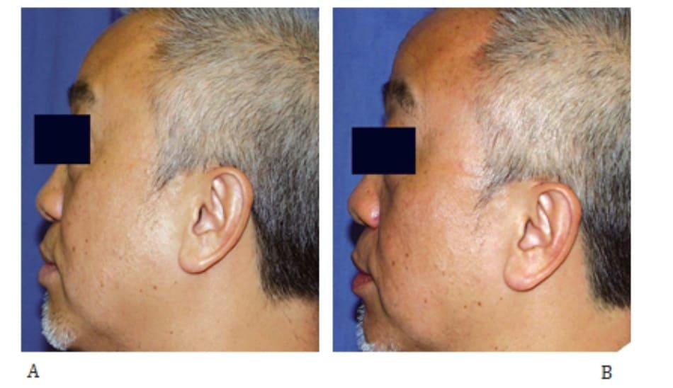 Hình 43-10 A, Trước điều trị. B, 4 tháng sau điều trị RF (mức độ điều trị: 13.0 đến 15.0, một lượt).