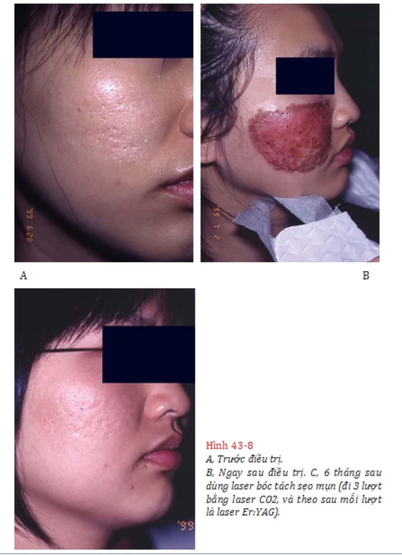 Hình 43-8 A, Trước điều trị. B, Ngay sau điều trị. C, 6 tháng sau dùng laser bóc tách sẹo mụn (đi 3 lượt bằng laser CO2, và theo sau mỗi lượt là laser Er:YAG).