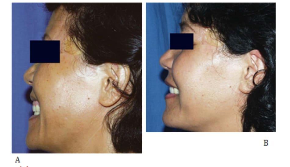 Hình 43-9 A, Trước điều trị. B, Sau 4 đợt điều trị laser Aranis (1540 nm, năng lượng 10 J/xung x 5 xung; quanh mắt: 30 J cho mỗi 10J/xung x 3 xung).