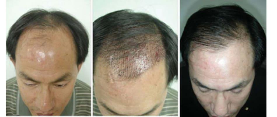 Hình 44-15 Một bệnh nhân trải qua một liệu trình đầy đủ.