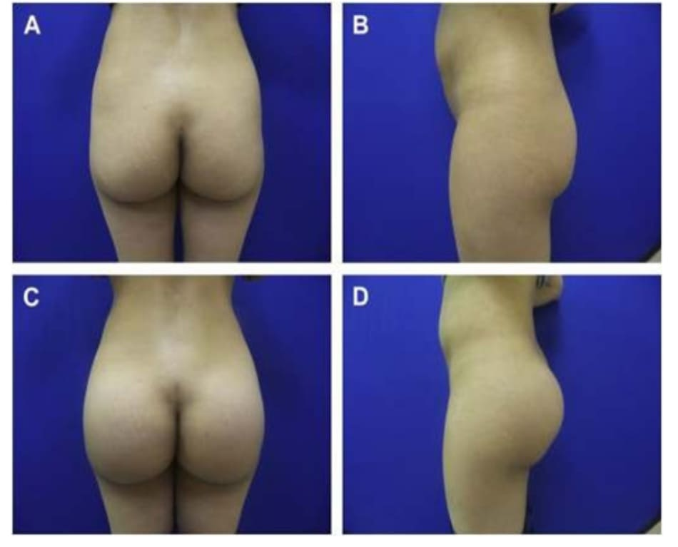 Hình. 1. Một phụ nữ 35 tuổi bị teo vùng mông mong muốn tăng kích thước và dáng vẻ bề ngoài. (A, B) Sáu tháng sau khi nâng mông với mô cấy là khối silicon tròn, dạng rắn với thể tích là 276 cm3. (C,D) Chú ý tăng thể tích nhưng đồng thời cũng phải đảm bảo vùng mông nhô ra tại đúng vị trí trung tâm.