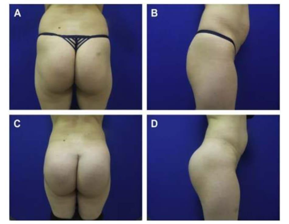 Hình. 3. Một phụ nữ 36 tuổi có vùng mỡ thừa ở khu vực thắt lưng cùng, mong muốn cải thiện đường bờ mông (đặc biệt khu vực thắt lưng cùng) và tăng kích thước vòng ba. (A,B) Sáu tháng sau thủ thuật nâng mông dưới cân với túi implant 301 cm3 silicone rắn, dạng tròn và hút 925 cm3 mỡ dưới da ở vùng thắt lưng cùng và mạn sườn. (C,D) Chú ý tỉ lệ eo/hông được cải thiện rõ rệt.