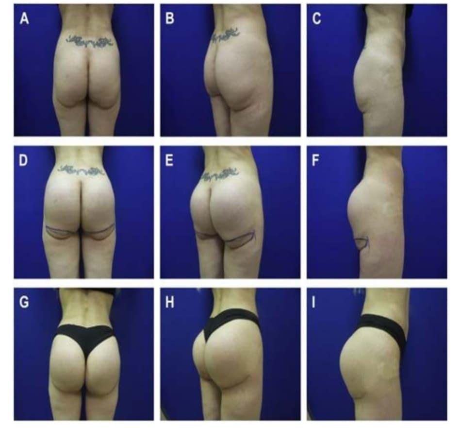 Hình. 4. Một phụ nữ 46 tuổi yêu cầu tăng kích thước vùng mông hai bên và loại bỏ lượng da thừa ở vùng này. (A-C) Một tháng sau khi thực hiện implant mông dưới cân với khối silicone dạng rắn, tròn, thể tích 276 cm3. Lưu ý các điểm đánh dấu trước phẫu thuật nhằm cải thiện nếp lằn mông. (D-F) 11 tháng sau khi implant và nếp lằn mông được chỉnh sửa (G-I)