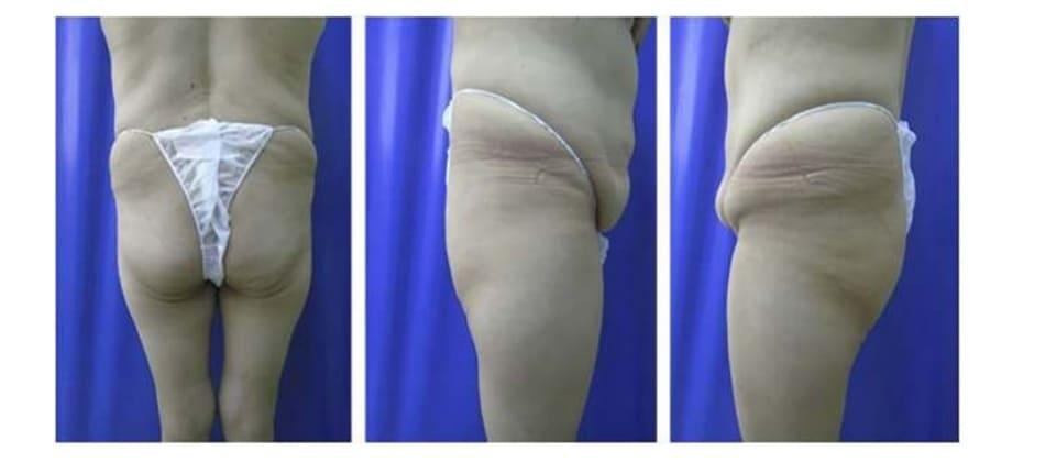 Hình. 2. Bệnh nhân với khung chậu quá rộng hoặc quá ngắn đều không phù hợp với implant mông.