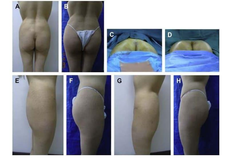 Hình. 3. (A-H) Tiền phẫu, chu phẫu và sau hậu phẫu 6 tháng của một bệnh nhân nữ 38 tuổi được ghép túi độn mông với thể tích 330 cm3.