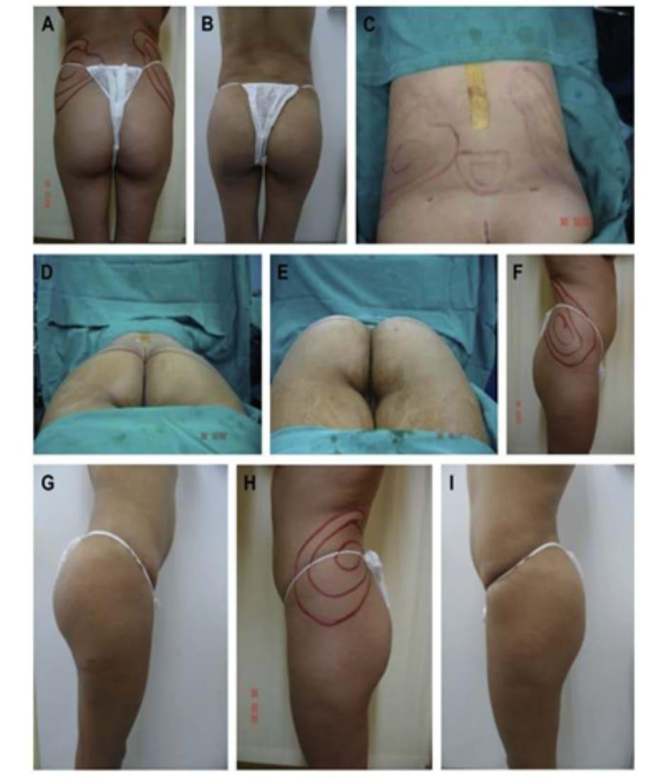 Hình. 4. (A-I) Hình ảnh tiền phẫu, chu phẫu và sau hậu phẫu 11 tháng của một phụ nữ 25 tuổi đã được thực hiện hút mỡ vùng éo, hông và sau xương vùng, đồng thời ghép khối cấy thể tích 270cm3.