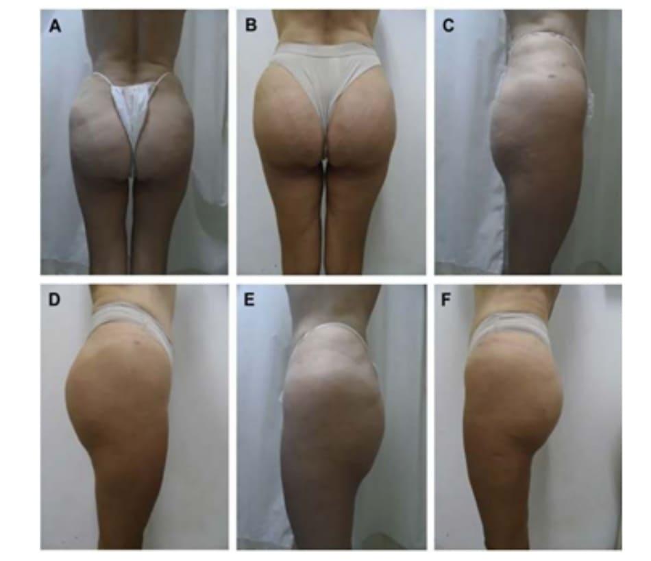 Hình. 5. (A-F) Hình ảnh tiền phẫu và sau hậu phẫu 4 tháng của bệnh nhân 67 tuổi, ghép khối implant thể tích 300 cm3.
