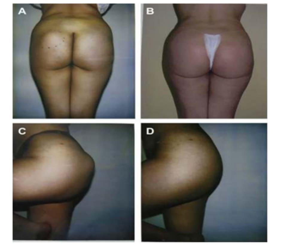 Hình. 7. (A-D) Hình ảnh tiền phẫu và hậu phẫu của bệnh nhân thoát vị khối implant ở mông trái.