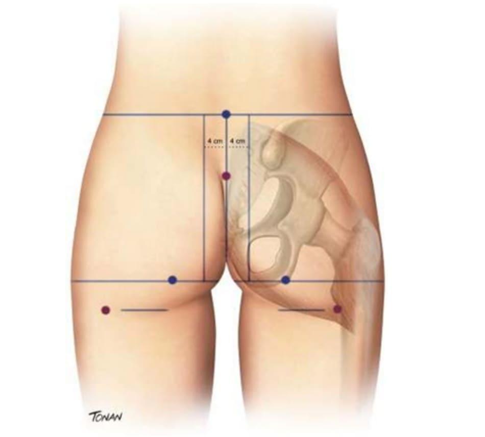 Hình. 1. Đường giữa khối xương cùng, tiếp nối với nếp liên mông. Hai đường song song, cách đường giữa 4 cm về hai phía. Một đường ngang tạo bởi đường nối ụ ngồi hai bên, vuông góc với đường giữa.