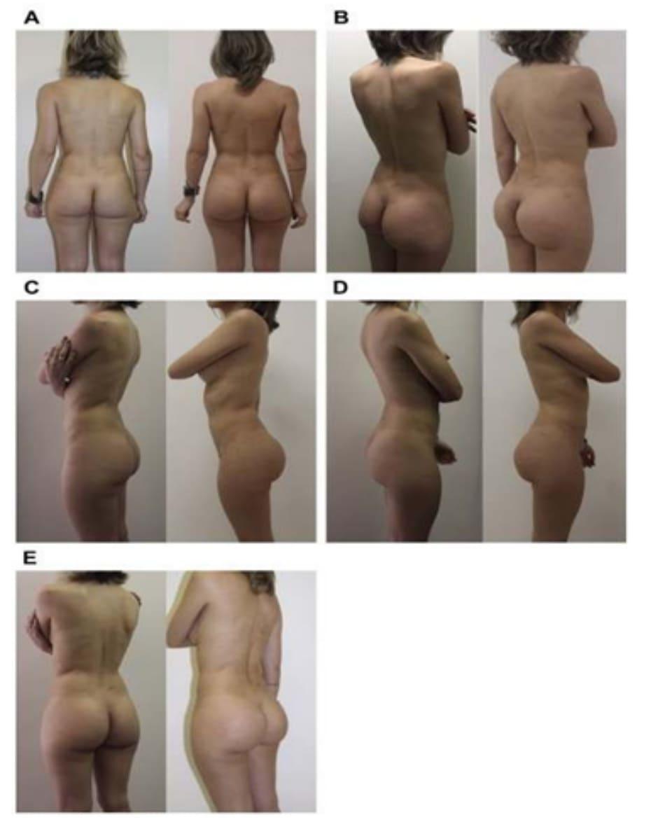 Hình. 10. Ca 3: Hình ảnh tiền phẫu (bên trái) từ phía sau, chếch sau phải của 1 bệnh nhân 29 tuổi với tình trạng thiểu sản vú và mông (A, C và E). Hình hậu phẫu (bên phải) sau 1 năm nhìn từ phía trước, chếch phải và bên phải sau khi implant ngực 2 bên thể tích 180 mL/bên và mông hai bên thể tích 235mL/bên kết hợp với ghép mỡ tự thân (B,D).