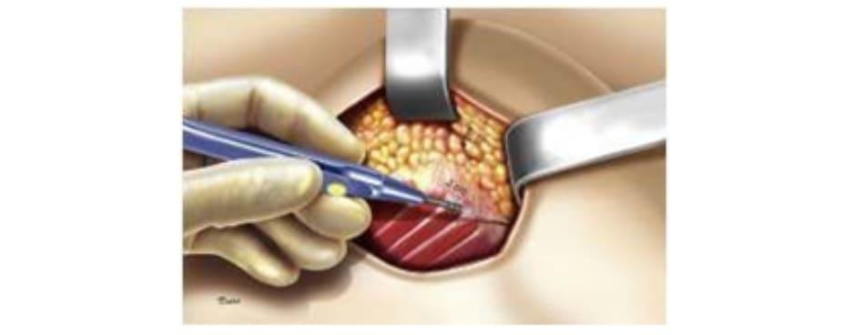 Hình. 4. Đường hầm dưới da có chiều rộng x dài là 2 x 4 cm là đủ để có thể tiếp cận tới lớp cơ và bóc tách được chúng.
