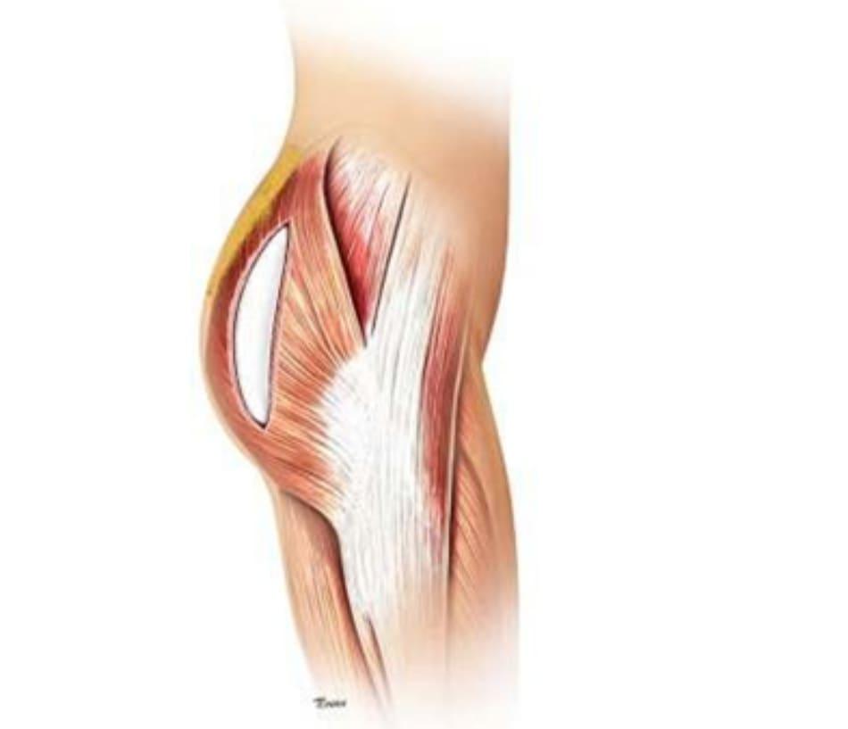 Hình. 7. Tiêm mỡ vào phần mông trên giúp tạo sự liên tục từ vùng thắt lưng cùng tới mông, đường nét cơ thể sẽ tự nhiên hơn.