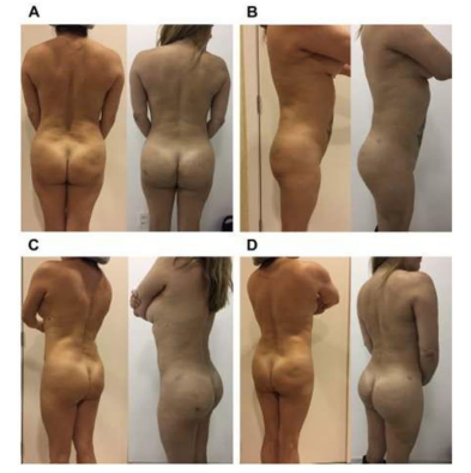 Hình. 8. (A-D) Ca 1: hình ảnh trước phẫu thuật nhìn từ phía sau, chếch sau trái, và bên trái bệnh nhân nữ 57 tuổi với tình trạng thiểu sản mông (Hình 2A, C). Hậu phẫu (5 ngày) nhìn từ phía sau, chếch sau trái, bên trái và chếch sau phải sau khi implant silicone hai bên mông (thể tích 325 mL) và ghép mỡ (B, D).