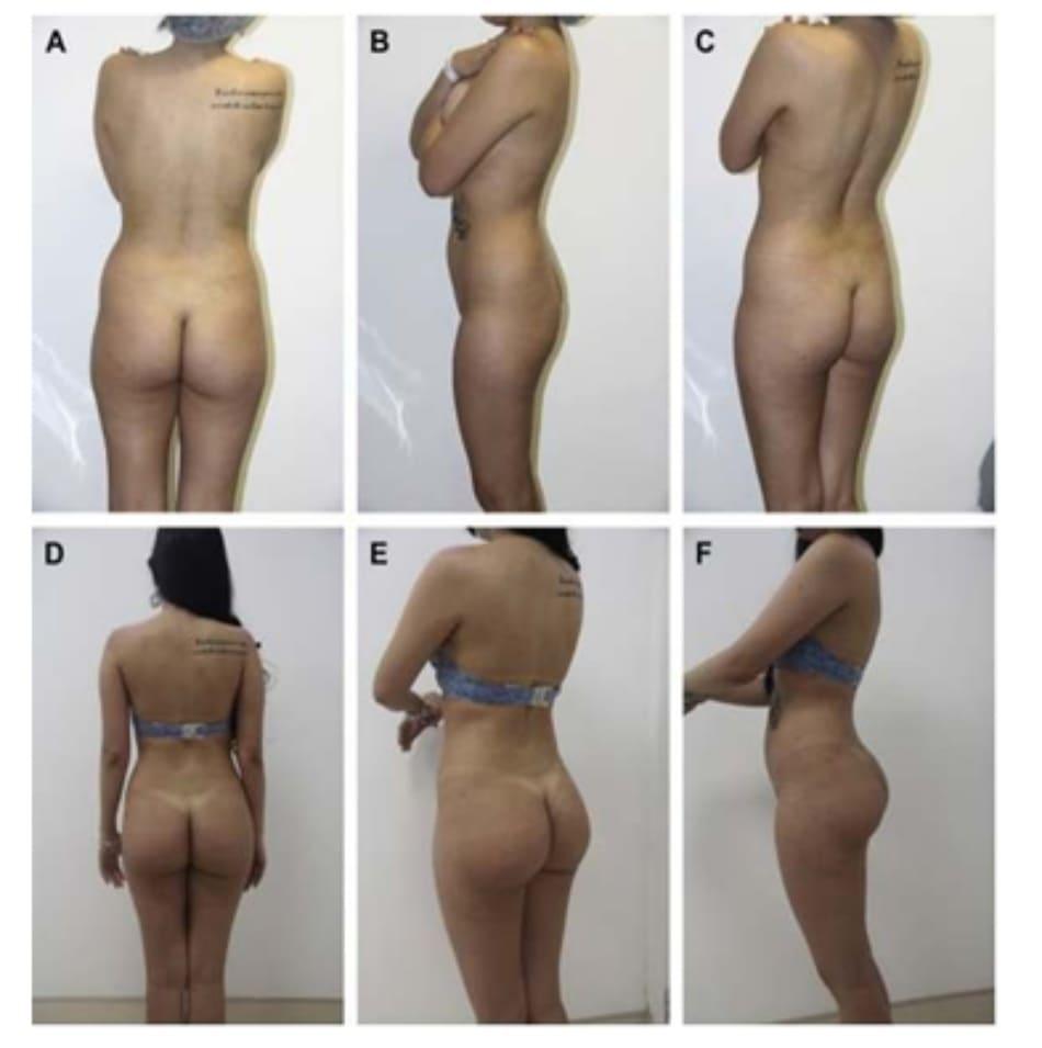 Hình. 9. (A-F) Ca 2: hình ảnh trước phẫu thuật nhìn từ phía sau, chếch sau phải, và bên phải bệnh nhân nữ 23 tuổi với tình trạng thiểu sản mông (Hình. 3A, C, và E). Hậu phẫu (1 năm) nhìn từ phía sau, chếch sau phải và bên phải của bệnh nhân với khối implant thể tích 375 mL, và ghép mỡ tự thân (B, D, và F).