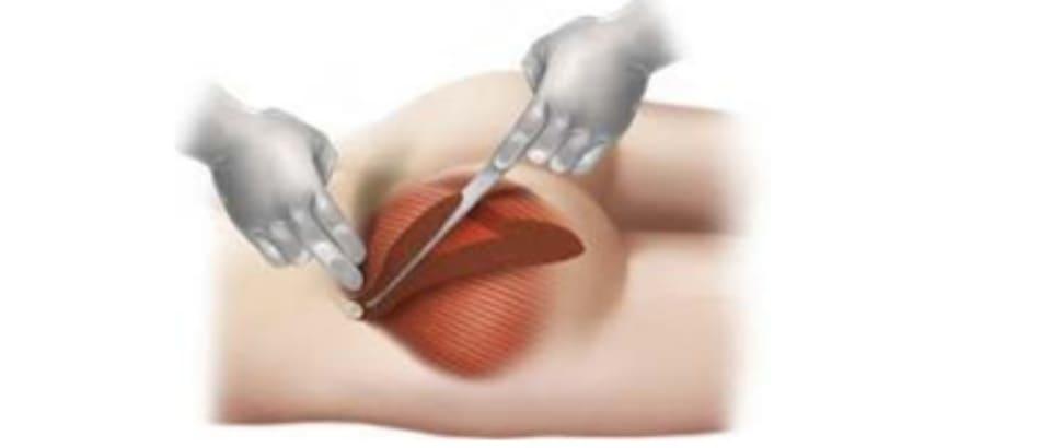 Hình. 4. Động tác đòi hỏi sự kết hợp của cả 2 bàn tay để có thể chia đôi cơ mông lớn một cách chính xác. Một tay đặt vào điểm Y trên đường G, nhấn đầu ngón cho tới khi đạt độ sâu 1cm (tương ứng với điểm giữa khối cơ). Trong khi đó, tay còn lại cầm dụng cụ bóc tách (dài 30cm và rộng khoảng 2.5 cm) được đặt tại điểm X, thực hiện động tác vừa đẩy vừa tách khối cơ, hướng đầu dụng cụ từ điểm X tới Y, chú ý lóc khối cơ theo đúng chiều cong của nó.