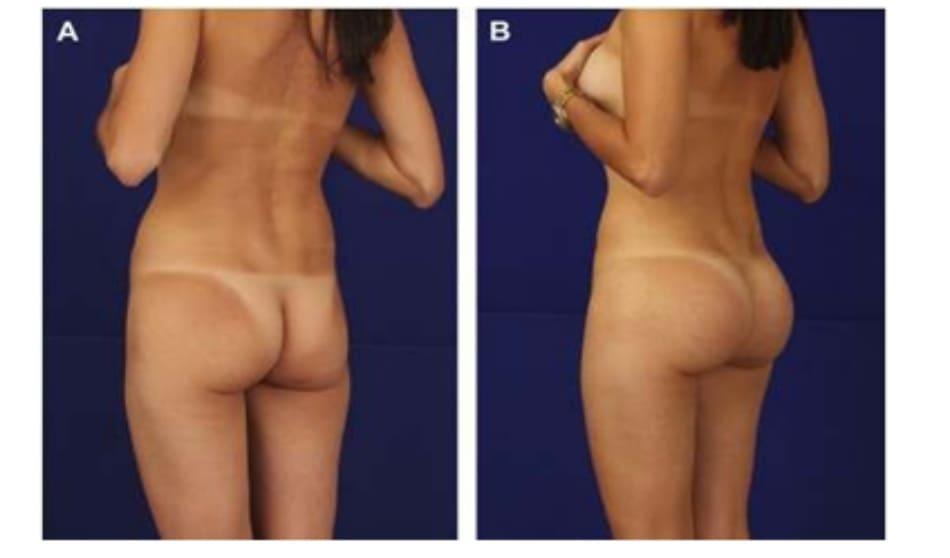 Hình. 6. (A) Bệnh nhân nữ 44 tuổi yêu cầu ghép mỡ để cải thiện hình thể mông, nhưng côđãđược thuyết phục chuyển sang implant mông. Thủ thuật bao gồm implant khối hình oval thể tích 350 cc và hút mỡ ở hông, eo dưới để tiêm vào vùng thiếu hụt ở mấu chuyển lớn. (B) Sau 6 tháng phẫu thuật.