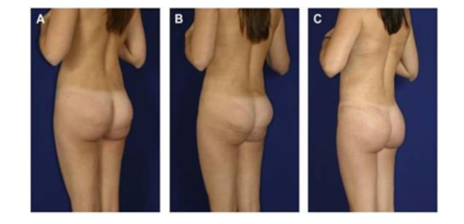 Hình. 7. (A) Bệnh nhân nữ 36 tuổi phàn nàn về tình trạng lộ mô cấy dưới da ở cưc trên của mông. Trên hình CT, các mô cấy nằm bên trong cơ lớp cơ mỏng và phần cơ còn lại bị dồn xuống dưới, tạo ra hiệu ứng bong bóng kép. (B) Khi co cơ, có thể thấy rõ khối implant lộ dưới da. Chỉ có phần dưới của cơ co lại do khối implant đã chiếm chỗ hết ở cực trên. (C) Các mô cấy cũ được lấy ra, mặt phẳng được đóng kín bởi chỉ Vicryl 2-0 và tạo lại mặt phẳng mới, đặt túi mới. một dẫn lưu được đặt cạnh túi implant mới để tránh biến chứng bướu huyết thanh. Đây là một biến chứng thường gặp khi loại bỏ và thay thế các mô cấy. Sau 4 tháng, các mô cấy được thay thế bằng phương pháp XYZ. Hình (C) là kết quả thu được sau 6 tháng cấy ghép lại.
