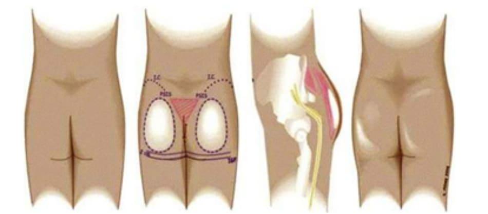 Hình. 1. Tương quan giải phẫu và vị trí của khối implant dưới cân cho thấy, chúng phải nằm ở vị trí trung tâm của mông và được che phủ hoàn toàn bởi hệ thống cân mạc bao phủ cơ. Dây thần kinh hông to, có thể nhìn thấy rõ từ phía bên, cách túi implant một khoảng cách tương đối an toàn. (Trích từ de la Peda JA. Subfascial technique for Gluteal Augmentation. Aesthet Surg J 2004;24:265-73; đã xin phép trước khi đăng tải.)