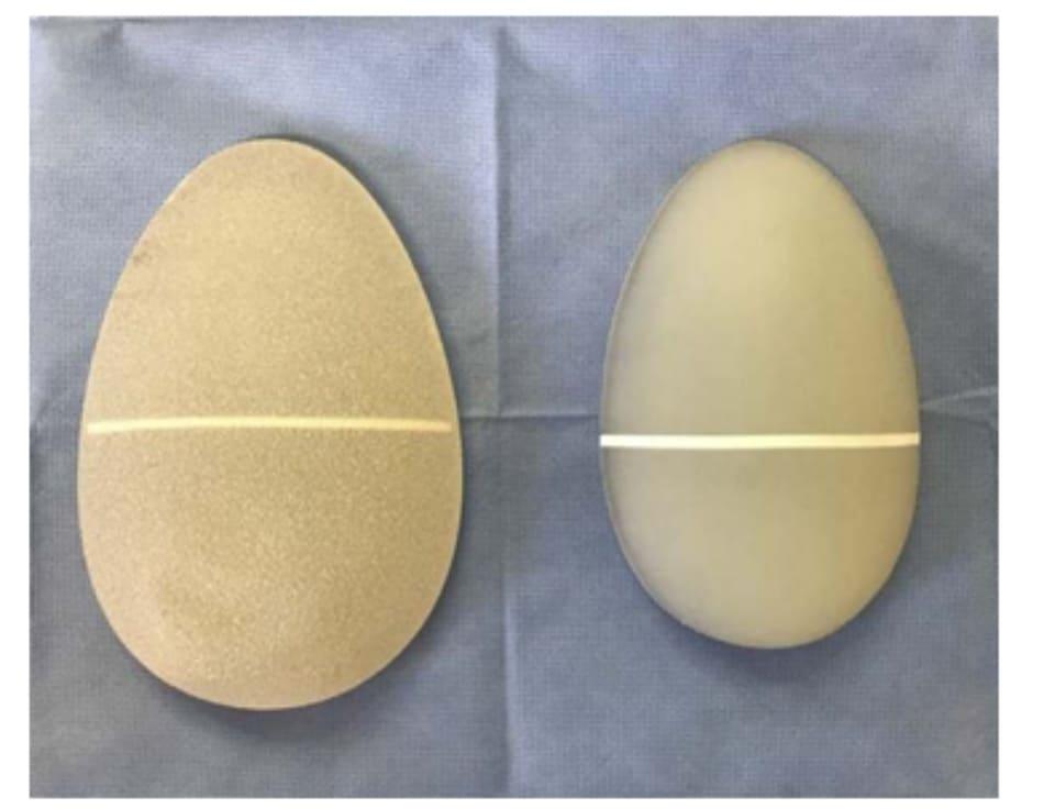 Hình. 17. Khối implant silicone (bên trái) và elastomer (bên phải) với một vạch trắng ở giữa để giúp Bác sĩ có thể định vị chúng khi phẫu thuật.
