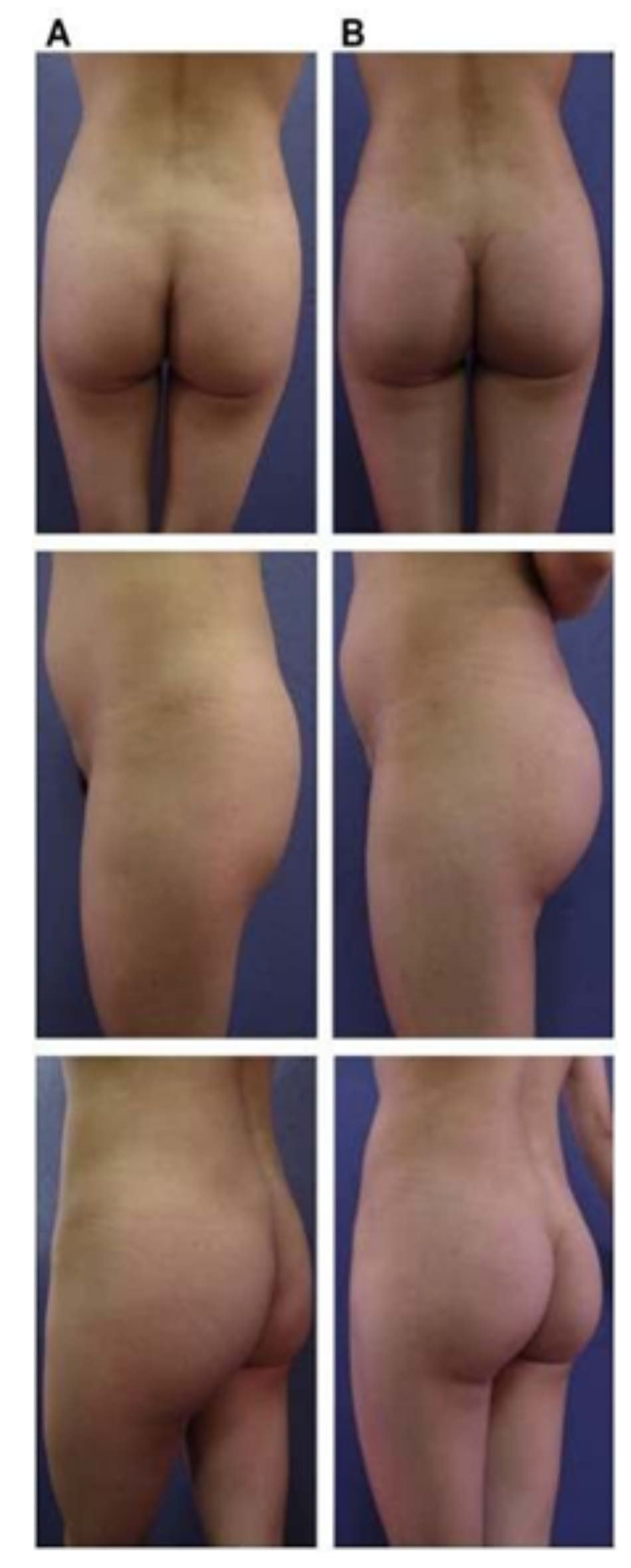 Hình. 18. . (A) Hình anh trước và (B) và sau phẫu thuật làm đầy mông của bệnh nhân được đặt khối implant dưới cân thể tích 225 mL, hai bên.
