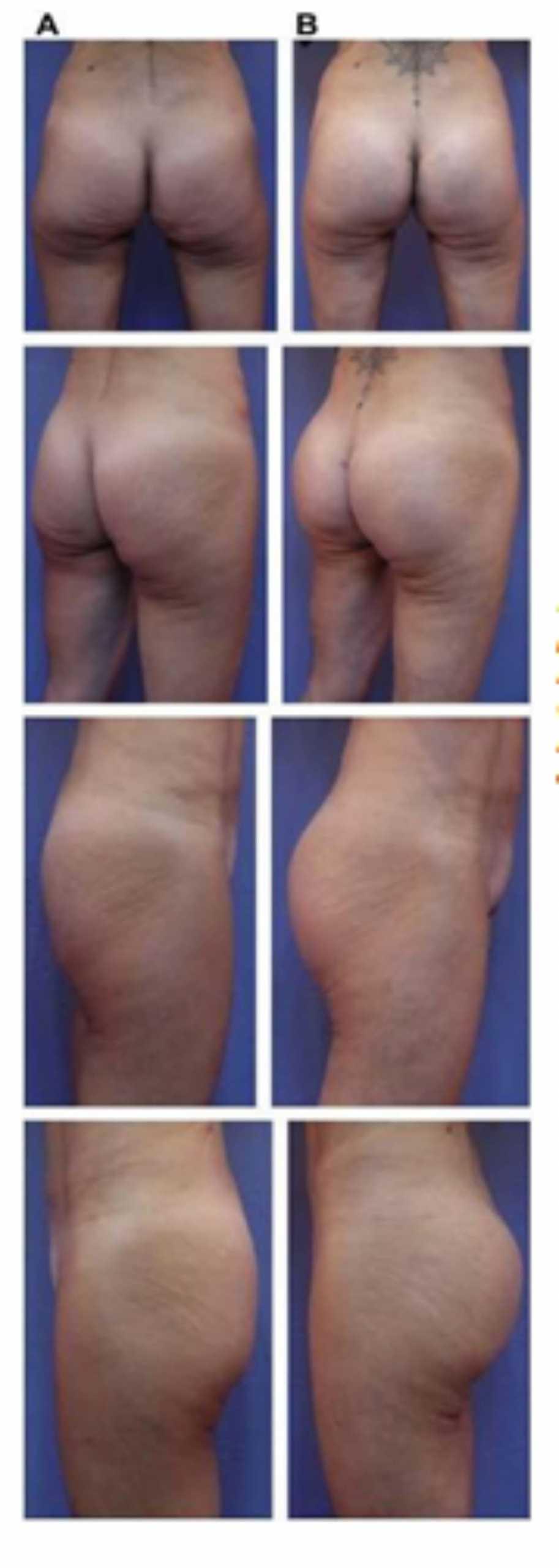 Hình. 19. . (A) Hình anh trước và (B) và sau phẫu thuật làm đầy mông của bệnh nhân chùng da vùng mông tương đối nhiều. Bệnh nhân được đặt khối implant dưới cân thể tích 330 mL ở hai bên.