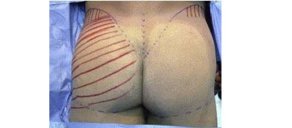 Hình. 2. Vị trí xuất chiếu của lớp cân mạc trên da kèm theo hướng đi của chúng. (Trích từ de la Pena JA, Rubio OV, Cano JP, et al. Subfascial Gluteal Augmentation. Clin Plast Surg 2006;33:408; đã xin phép trước khi đăng tải.)