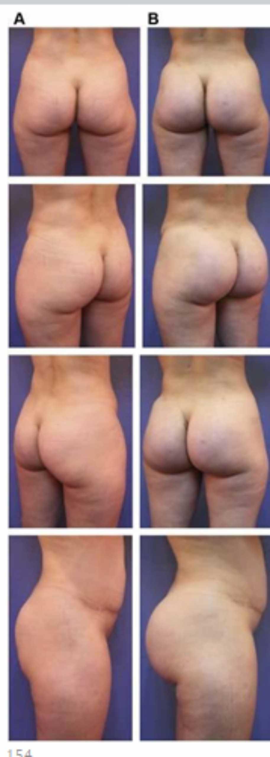 Hình. 20. (A) Hình anh trước và (B) và sau phẫu thuật làm đầy mông của bệnh nhân có vùng mông tương đối đầy đặn. Bệnh nhân được đặt khối implant dưới cân thể tích 330 mL ở hai bên.